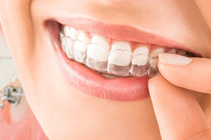 Invisalign Braces - Harper Ortho